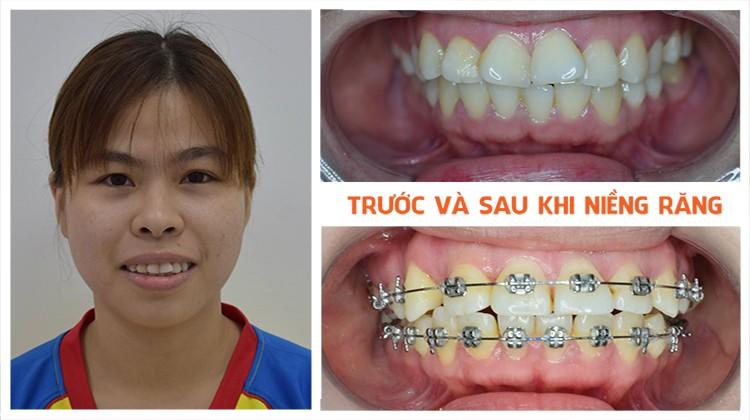 Trải lòng: Lý do niềng răng và chi phí niềng răng