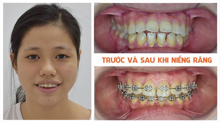 Tổng hợp các tiêu chí chuẩn để lựa chọn nha khoa niềng răng tốt