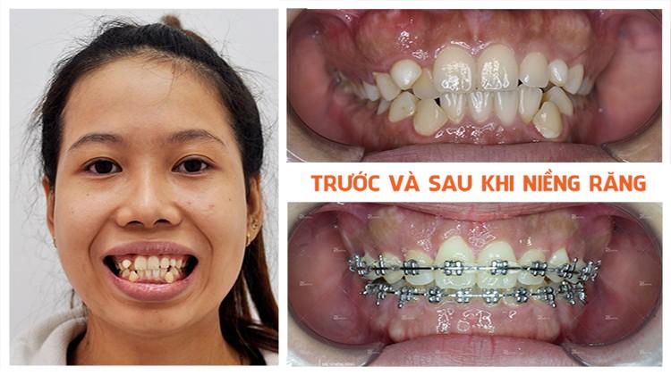 Chia sẻ kinh nghiệm niềng răng của cô gái sắp tháo niềng