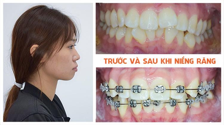 Phương pháp điều trị hiệu quả răng hô và mọc lệch