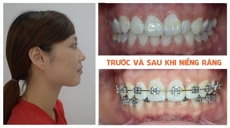 Điều hài lòng nhất trong quá trình niềng răngtại Up Dental