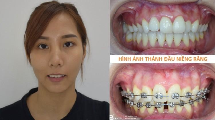 Điều trị răng hô, sai khớp cắn nhờ niềng răng