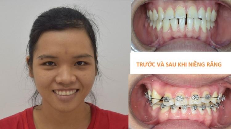 Niềng răng hô 2 hàm và cách chăm sóc răng khi niềng
