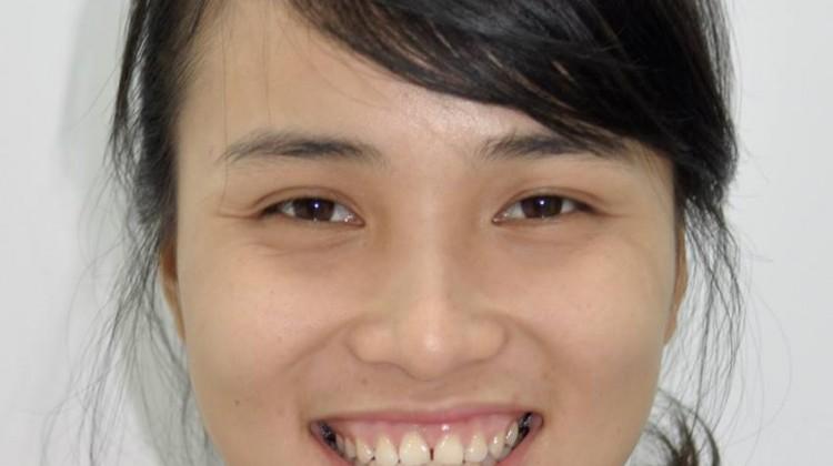 Những lợi ích tiềm ẩn của niềng răng khiến bạn sẽ không thể ngờ đến