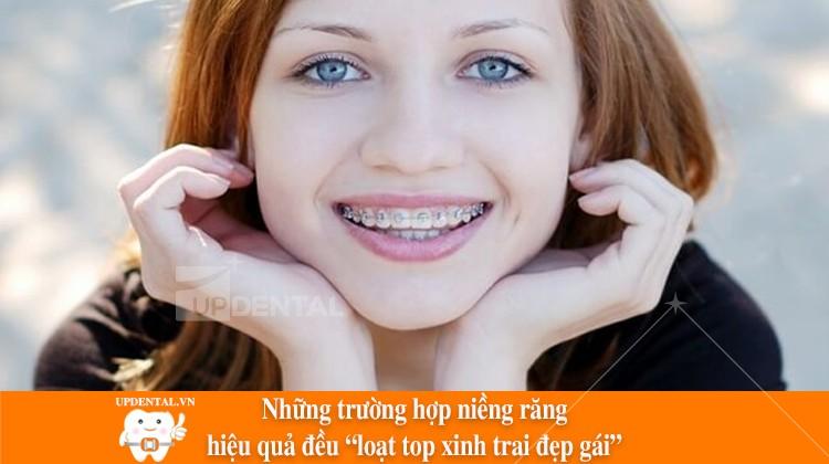 """Những trường hợp niềng răng hiệu quả đều loạt top """"trai xinh gái đẹp"""""""