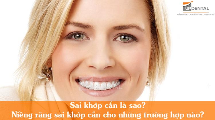 Niềng răng sai khớp cắn bao lâu đạt hiệu quả?