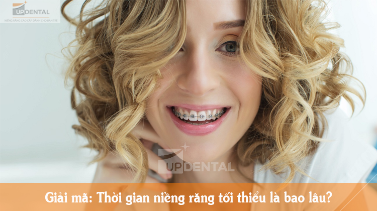 Giải mã: Thời gian niềng răng tối thiểu là bao lâu?