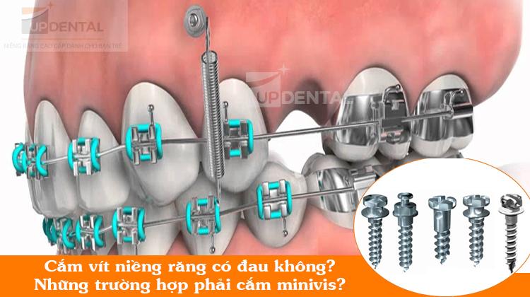 Cắm vít khi niềng răng có đau không?