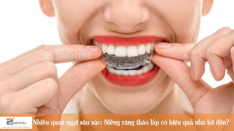 Nhiều quan ngại sâu sắc: Niềng răng tháo lắp có hiệu quả như lời đồn?