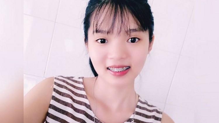 Cô gái 1m52 làm thơ chia sẻ kinh nghiệm niềng răng