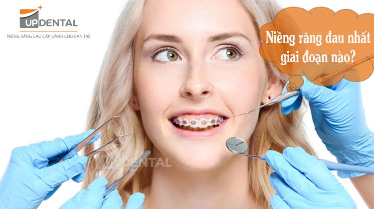 Niềng răng đau cỡ nào? Cách giảm đau khi niềng răng