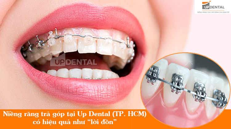 Niềng răng trả góp tại Up Dental có hiệu quả như lời đồn