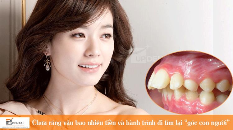 """Chữa răng vẩu bao nhiêu tiền và hành trình đi tìm lại """"góc con người"""""""
