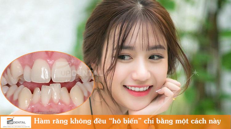 """Hàm răng không đều được """"hô biến"""" chỉ bằng một cách này"""