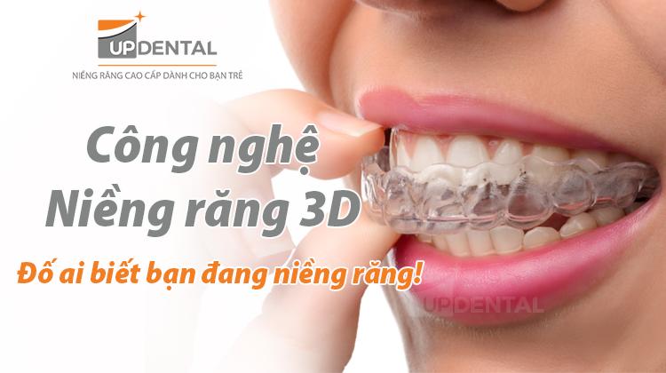 Công nghệ niềng răng 3D - Đố ai biết bạn đang niềng răng