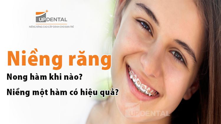 Niềng răng nong hàm khi nào? Niềng răng một hàm có hiệu quả không?