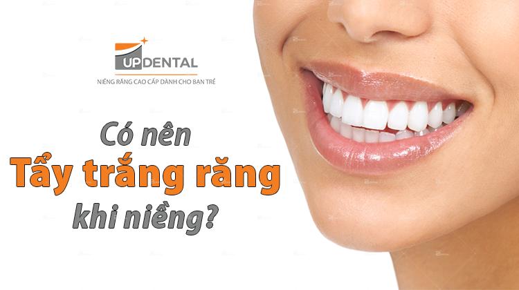 Tẩy trắng răng khi niềng và những lời khuyên từ Bác sĩ
