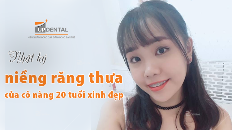 Nhật ký niềng răng thưa của cô nàng 20 tuổi xinh đẹp