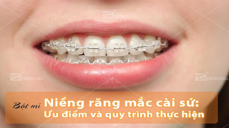 Bật mí niềng răng mắc cài sứ: Ưu điểm và quy trình thực hiện