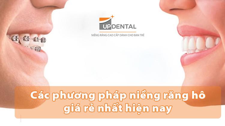 Các phương pháp niềng răng hô giá rẻ nhất hiện nay