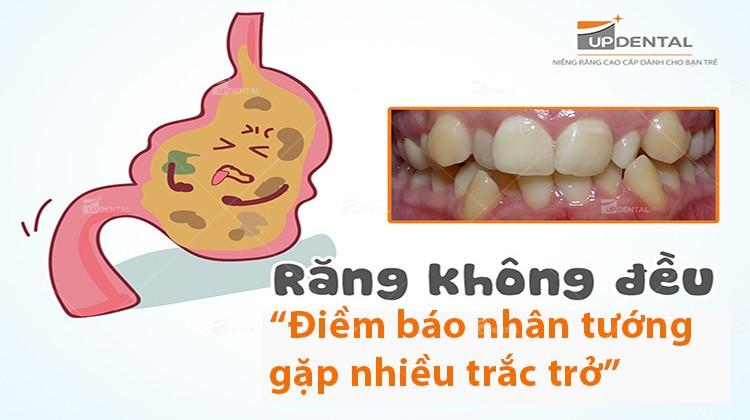 Răng mọc không đều, đoán nhân tướng qua hàm răng