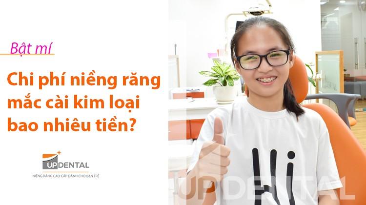 Năm 2019 niềng răng mắc cài kim loại giá bao nhiêu tiền?