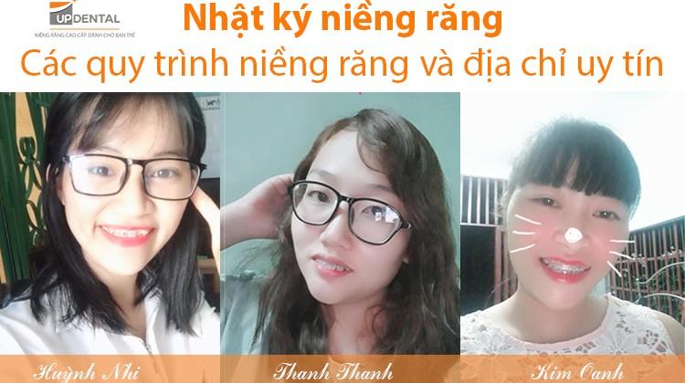 Bật mí quy trình niềng răng ở nha khoa uy tín Up Dental - Huỳnh Nhi, Thanh Thanh, Kim Oanh