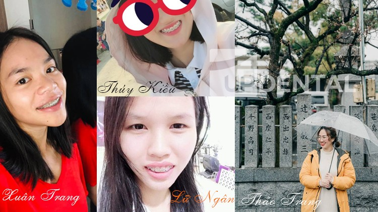 Niềng răng - Quyết định không bao giờ hối hận của Xuân Trang, Thúy Kiều, Lữ Ngân và Thảo Trang