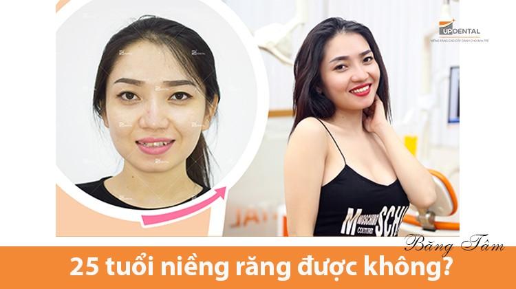 25 tuổi niềng răng được không? Nghe kinh nghiệm của cô nàng xinh đẹp Băng Tâm
