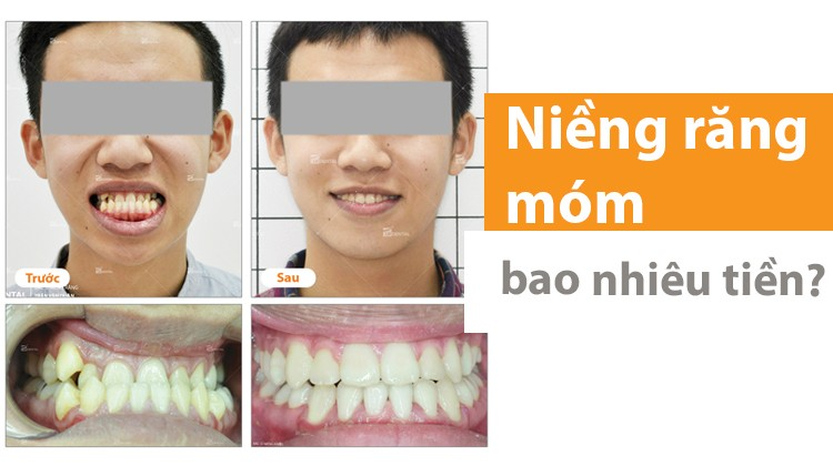 Năm 2021 niềng răng móm bao nhiêu tiền?