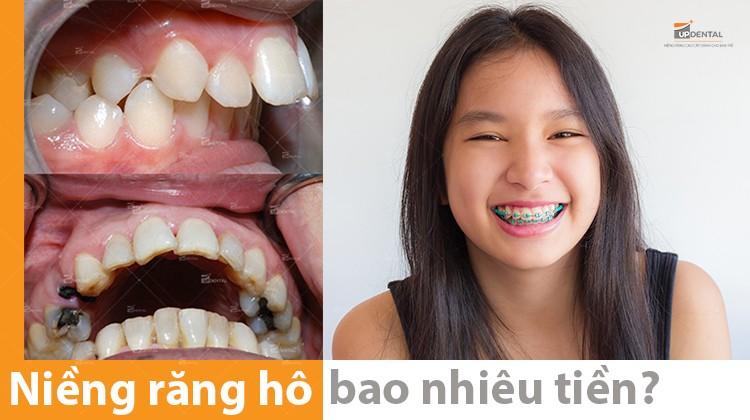 Năm 2021 giá niềng răng hô bao nhiêu tiền?