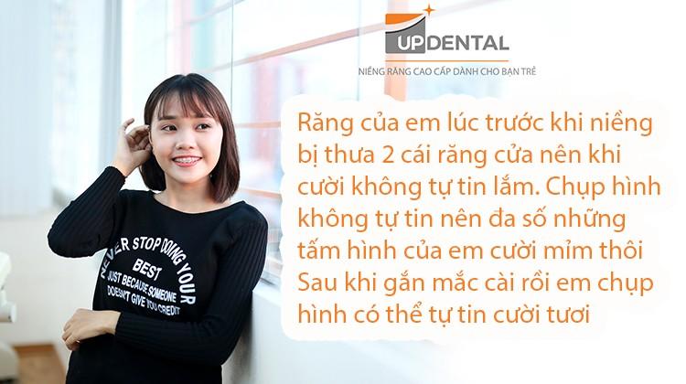Nên hay không nên niềng răng - Trải lòng của cô gái tuổi 22 Quách Mỹ Thuận