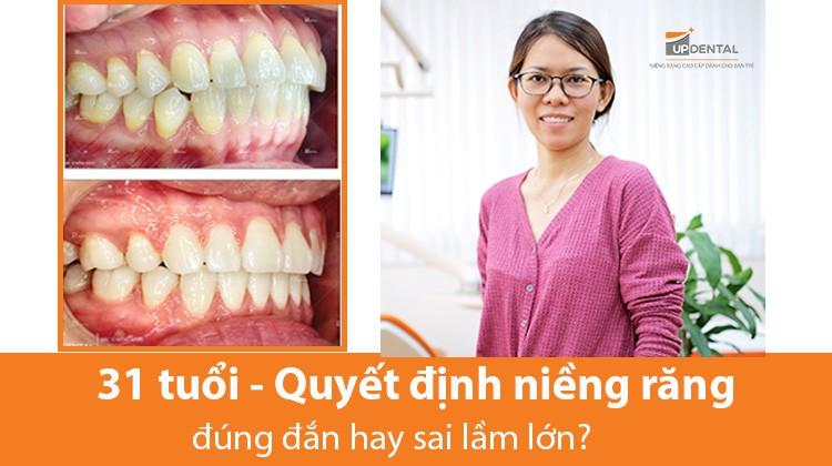 Niềng răng ở tuổi 31 - Quyết định đúng đắn hay sai lầm lớn? - Khách hàng Mỹ Hương