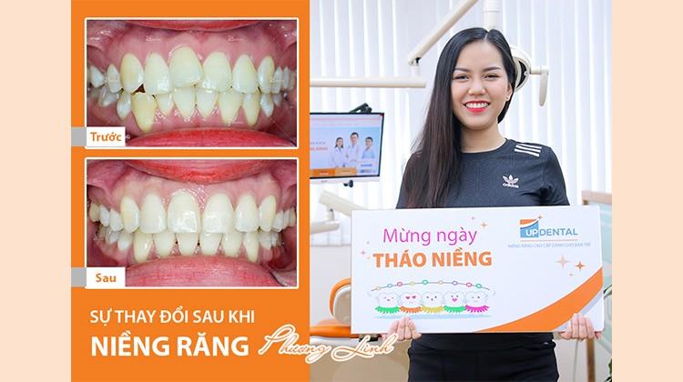 Review niềng răng mắc cài sứ có tốt không? Khách hàng Phương Linh