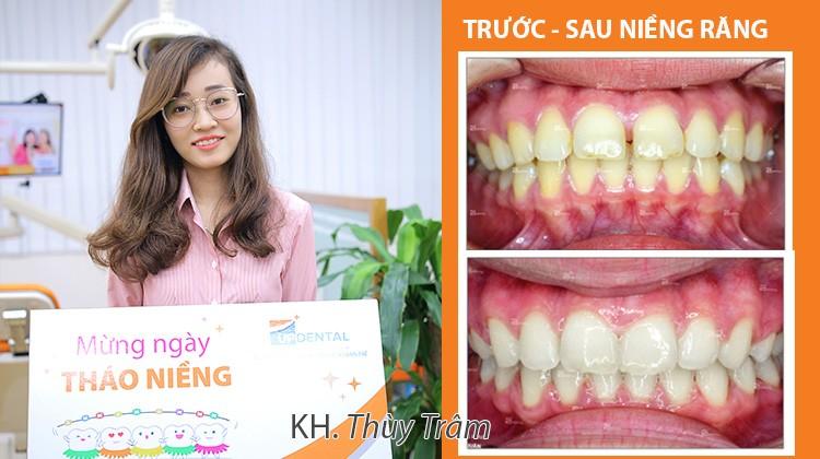 Quyết định niềng răng hô - thưa 2 năm, cô giáo 25 tuổi lo lắng ảnh hưởng giọng nói