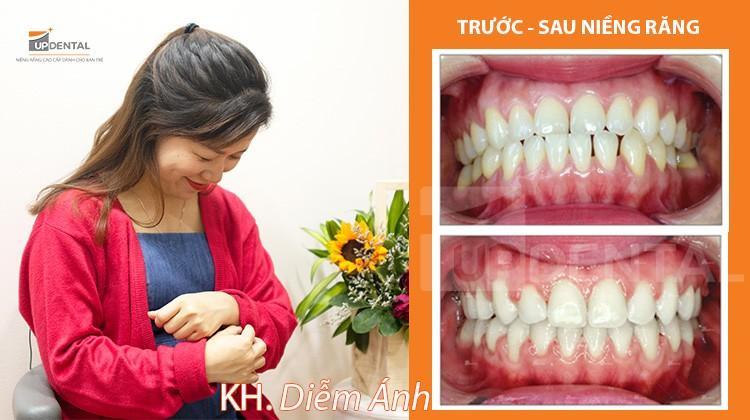 Răng thưa thay đổi như thế nào khi niềng răng? - Review niềng răng Diễm Ánh (30 tuổi)
