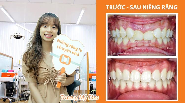 Tự ti vì bạn bè trêu chọc hàm răng xấu, nữ sinh Hutech quyết định niềng răng