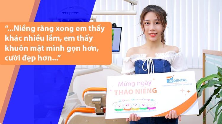 Niềng răng phải lưu ý nhất 3 tháng đầu: Chia sẻ của cô nhân viên Spa 24 tuổi - Vũ Huệ