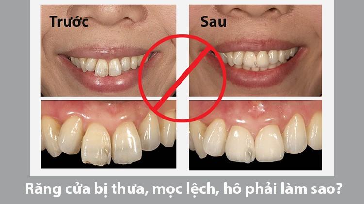 Tổng hợp các khuyết điểm và thời gian niềng răng cửa