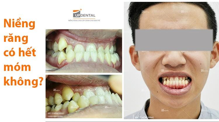 Niềng răng có hết móm hay không? Câu trả lời từ chuyên gia của Up Dental