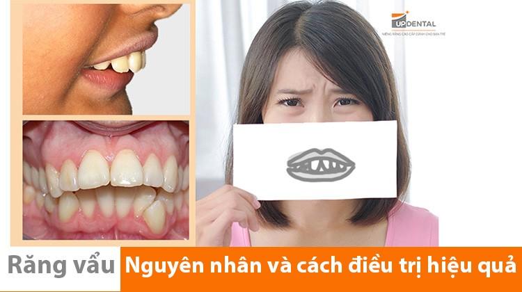 Niềng răng vẩu - bạn đã biết những điều này chưa?