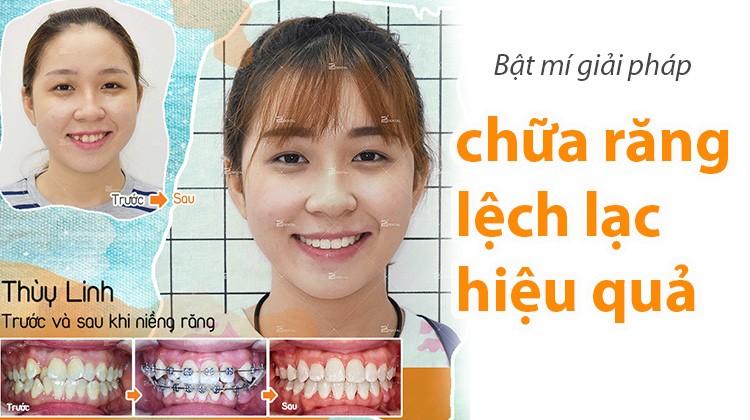 Niềng răng lệch lạc - giải pháp hiệu quả điều trị răng lộn xộn
