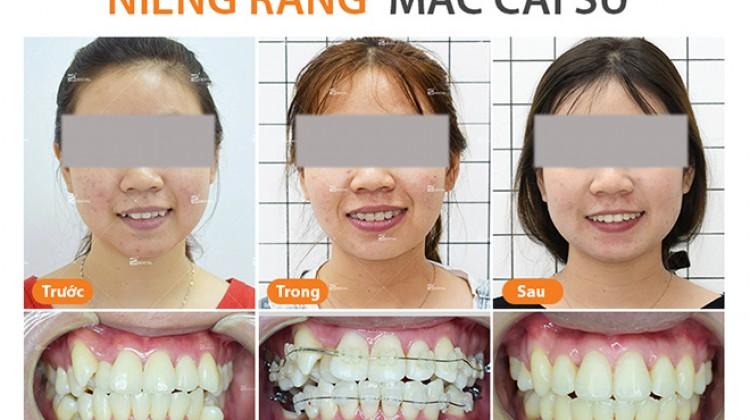 Những điều bạn cần biết về niềng răng mắc cài sứ