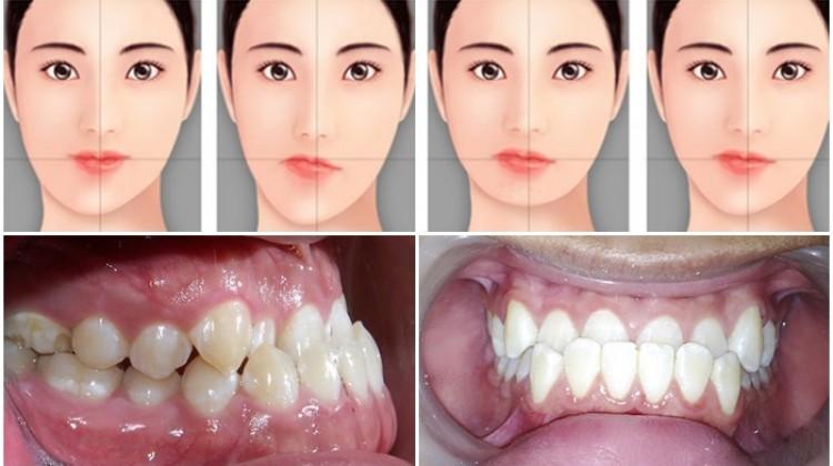 Niềng răng lệch hàm có cải thiện được hàm lệch không?