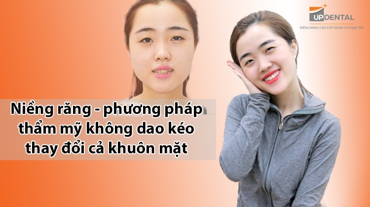 Niềng răng - phương pháp thẩm mỹ không dao kéo thay đổi cả khuôn mặt
