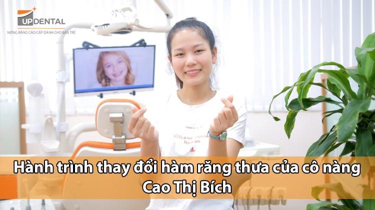Hành trình thay đổi hàm răng thưa của cô nàng Cao Thị Bích