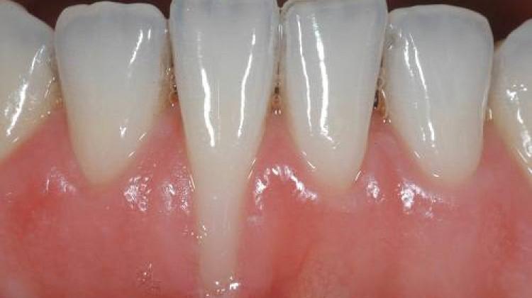 Cách khắc phục niềng răng bị tụt lợi