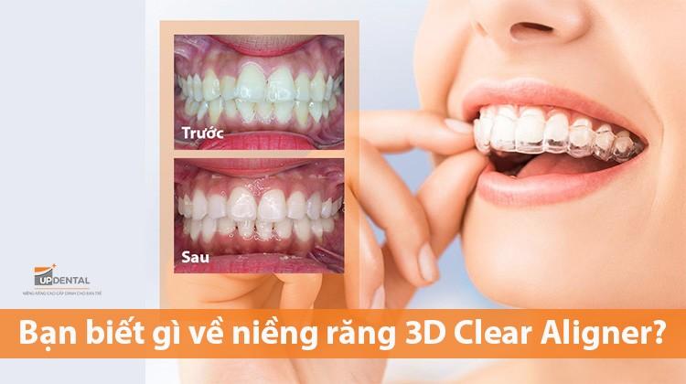 Bạn biết gì về niềng răng 3D Clear Aligner?