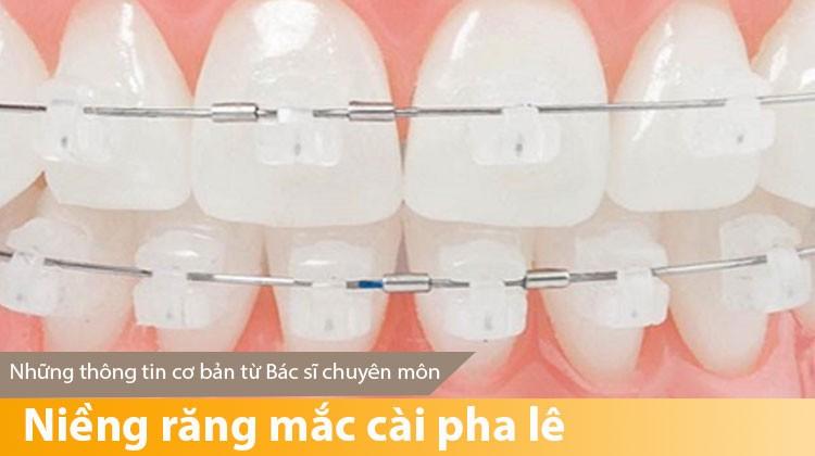 Niềng răng mắc cài pha lê - Những thông tin cơ bản từ Bác sĩ chuyên môn