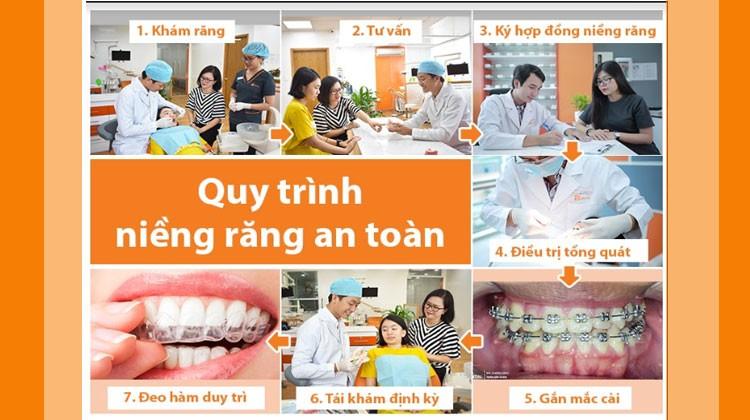 Các bước trong quy trình niềng răng chuẩn Y khoa